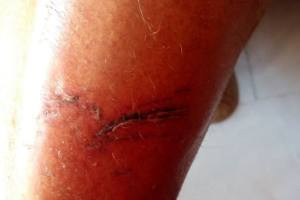 Grave incidente en la playa urbana de Sanlúcar